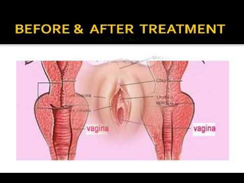 Tight Vagina Naturally With 100 Herbs Vagina Tightening Ayurvedic Kit  E0 A4 Af E0 A5 8b E0 A4 A8 E0 A4 Bf  E0 A4 B8 E0 A4 82 E0 A4 95 E0 A5 81 E0 A4 9a E0 A4 Bf E0 A4 A4  E0 A4 95 E0 A5 87