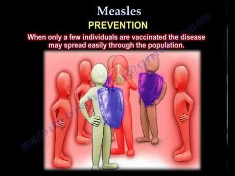 Measles  - Everything You Need To Know - Dr. Nabil Ebraheim