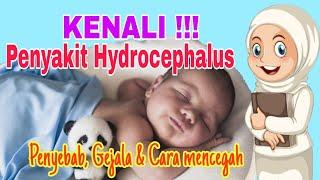 SBR   BANDUNGTV   FARHAT MUMTAZ   Menderita Penyakit Hidrosefalus Atau Pembesaran Lingkar Kepala Sej.