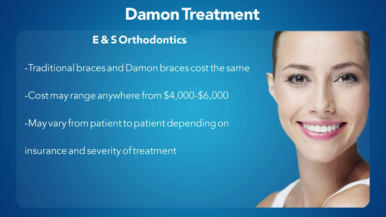 What\'s The Cost Of Damon Braces? - YouTube
