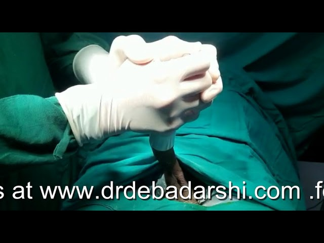 Stapler Circumcision by Dr Debadarshi Rath