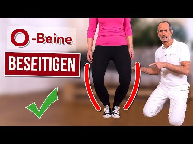 Nie mehr O-Beine! ✅ So kannst du das schaffen! 💪