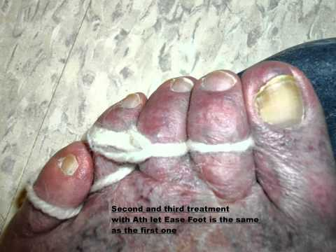Slideshow about athlete's foot.