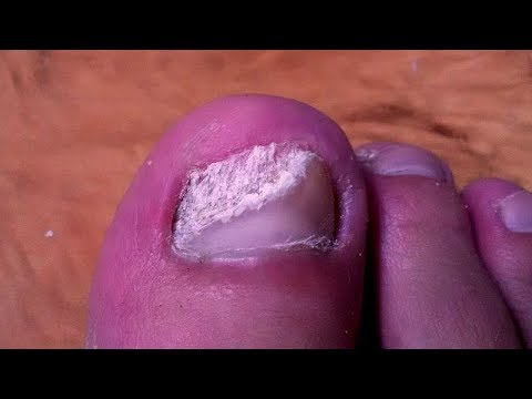 ВЫЛЕЧИЛ грибок Лечение грибка ногтей