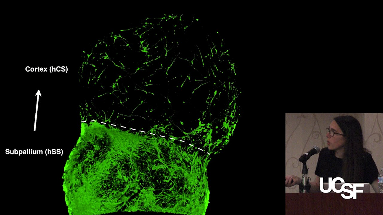 Developing Human Cellular Models of Neurodevelopmental Disorders