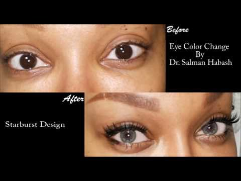 brightocular eye color change surgery starburst design by drsalman habash - Eye Color Change Surgery Before And After