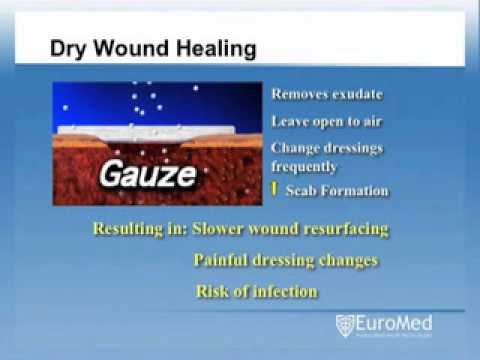 Wound Management/Types of Wound Dressings - Medtronic