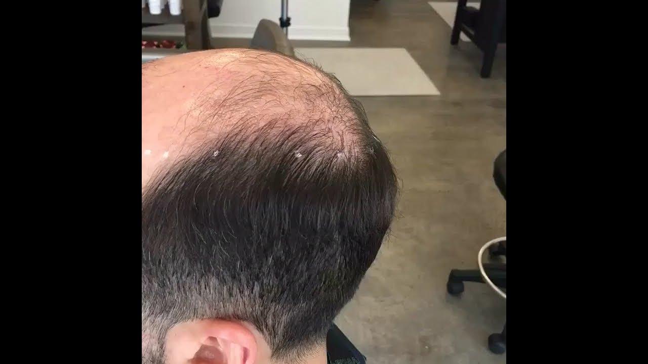 Salonjuan Cnc Cesare Ragazzi Men S Non Surgical Hair Replacement