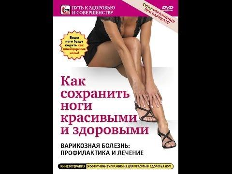 Как сохранить ноги здоровыми и красивыми. ВАРИКОЗНАЯ БОЛЕЗНЬ: профилактика и лечение.