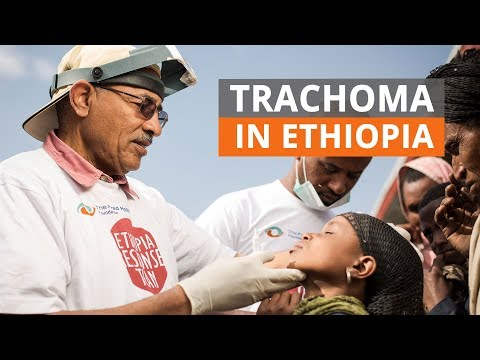 SAFE strategy to fight trachoma in Ethiopia