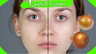 ماسك البصل بمكون واحد التخلص حب الشباب ازالة بقع الشمس، وندبات حب الشباب، بثور الوجه | Mask Al Basal