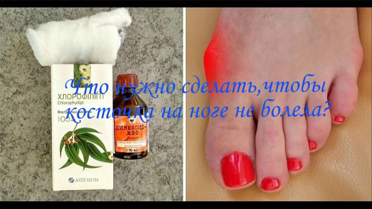 Косточка на большом пальце ноги - как лечить и почему растет