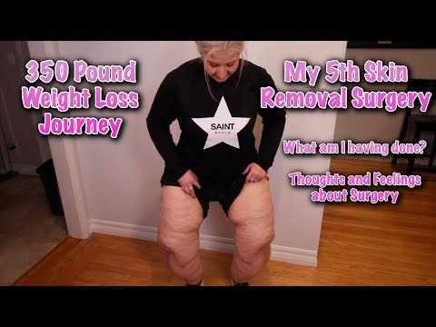MY SKIN REMOVAL JOURNEY AFTER LOSING 350 POUNDS.  GETTING READY FOR SURGERY #5