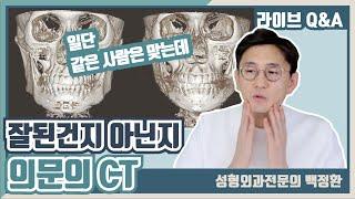피질절골술과 사각턱수술후 사진 두개가 있는데 같은사진이…