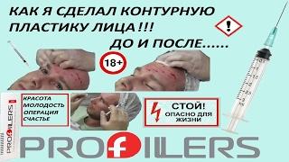 Пластические операции. Контурная пластика лица. Филлеры БОТОКС