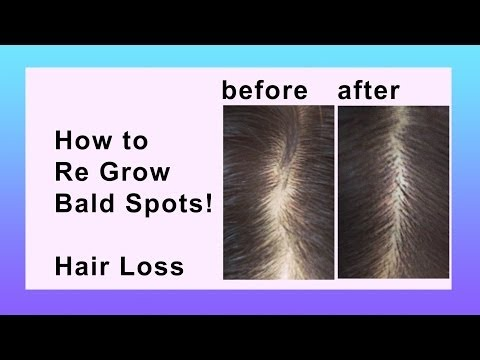Hair Loss Natural Home Remedy
