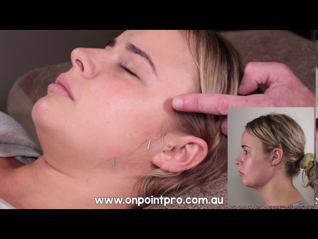 Cosmetic Acupuncture - Treating the Temporalis and Masseter