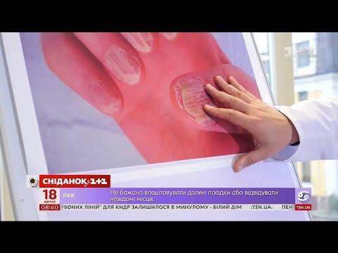 Методи лікування псоріазу - Доктор Валіхновський