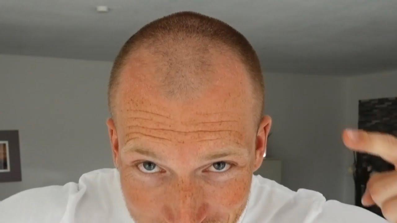 Haare Weg Wie Damit Umgehen Schmale Glatze