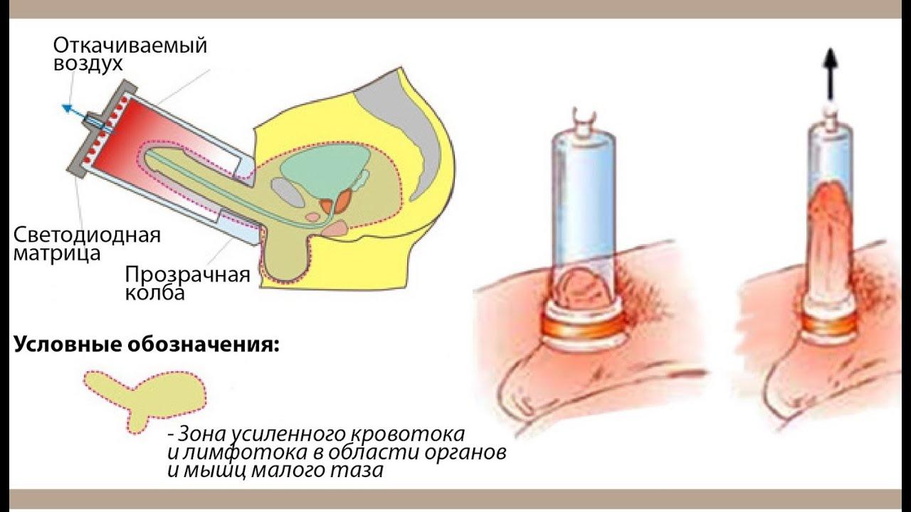 импотенция лекарства от импотенции