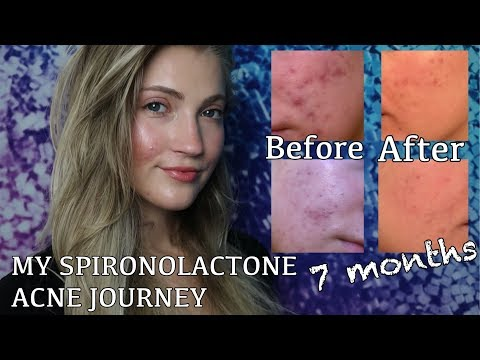 SPIRONOLACTONE FOR HORMONAL ACNE (BEFORE + AFTER PICTURES) MY EXPERIENCE AND WHY I STOPPED TAKING IT