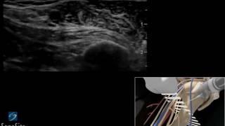 Аппарат УЗИ анестезия(Аппараты УЗИ - http://teh-med.ru/yltrazvykovaya_sistema_m_turbo_2., 2016-12-05T20:16:35.000Z)