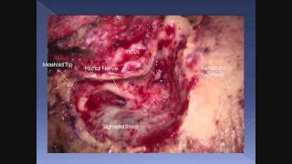 Transmastoid Middle Fossa Resection of Giant Cholesterol Granuloma-James K. Liu, MD