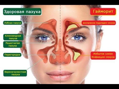 лечение геморита пазух носа