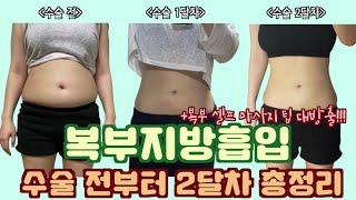 ♀️복부 지방흡입 수술 전~2달차 총정리!! (fea…