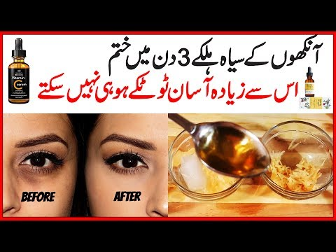 Remove Dark Circles Natural Home Remedies Also Get Rid of Under Eye Wrinkles in 3 Days Urdu Hindi