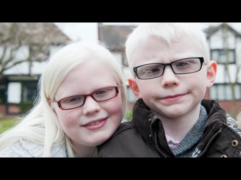 Albino Kids Won't Let Their Condition Hold Them Back