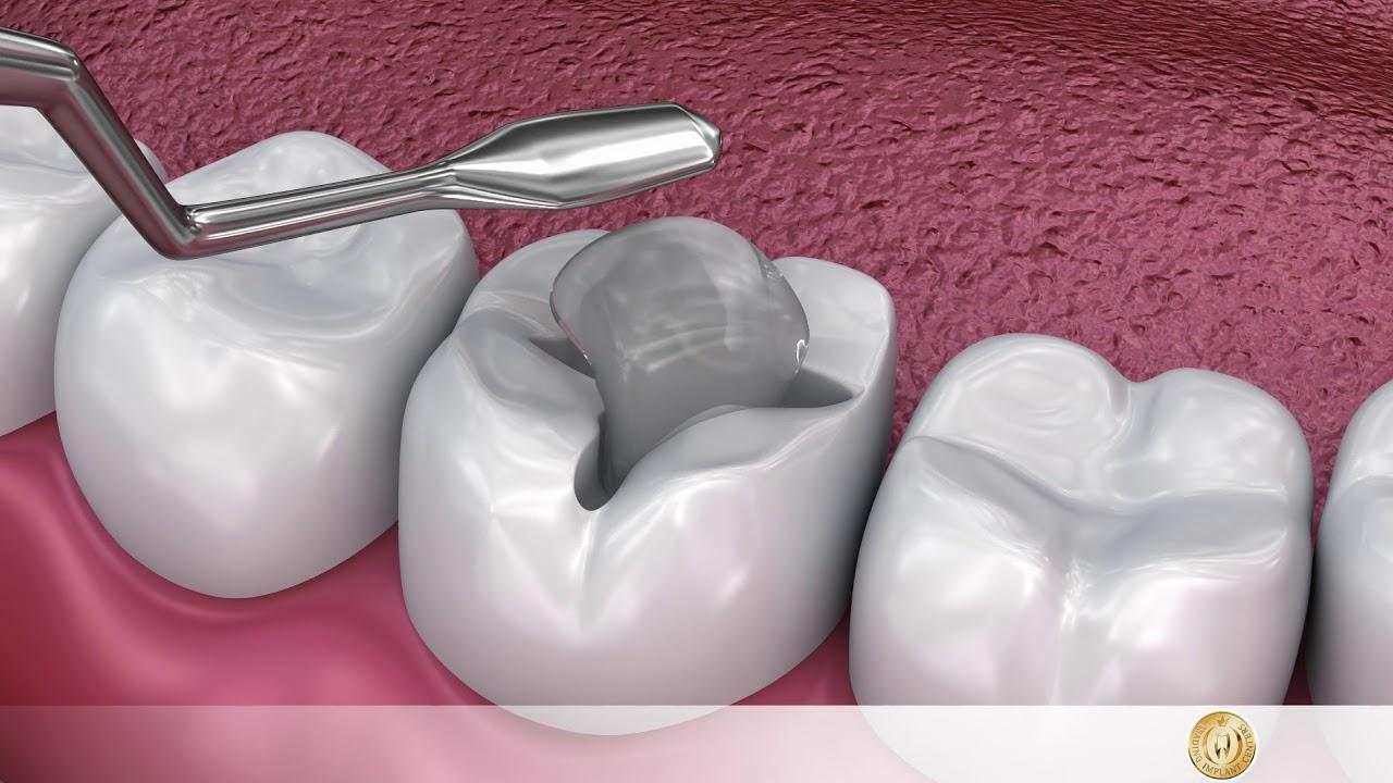 Flüssige Diät nach dem Entfernen eines Zahnes