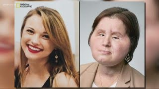 Face transplant recipient gets second chance after failed suicide attempt