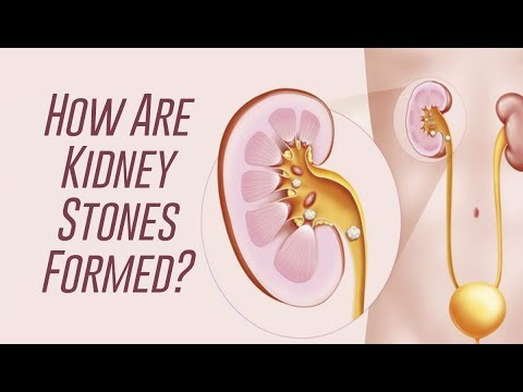 How Kidney Stones Are Formed