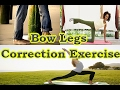 Top Bow Legs Correction Exercises