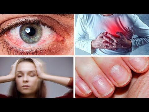 7 Scary Symptoms That Are Usually Harmless