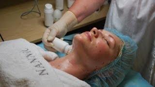 Безинъекционная Мезотерапия и Лифтинг на Аппаратах Nannic.