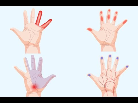 Sign That Your Hands Are Trying To Tell You About Your Health!