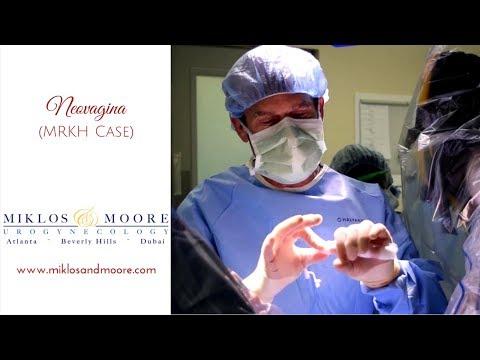 Neovagina Surgery Walkthrough by Dr. Robert D. Moore