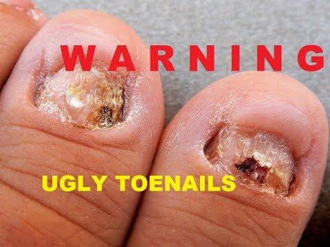 ugly toe nail transformation