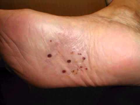 Cure Dyshidrotic Eczema - More About Dyshidrotic Eczema ...