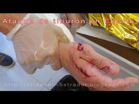 Ataque de tiburón en España - Elche (Alicante) Comunidad Valenciana