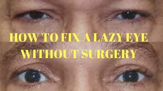 how to fix a lazy eye without surgery (lazy eye exercise)