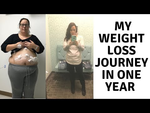 one-year-later...-gastric-sleeve-surgery-●-vsg-●-surgery-anniversary
