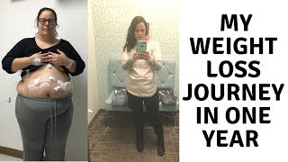 ONE YEAR LATER... GASTRIC SLEEVE SURGERY | VSG | SURGERY ANNIVERSARY