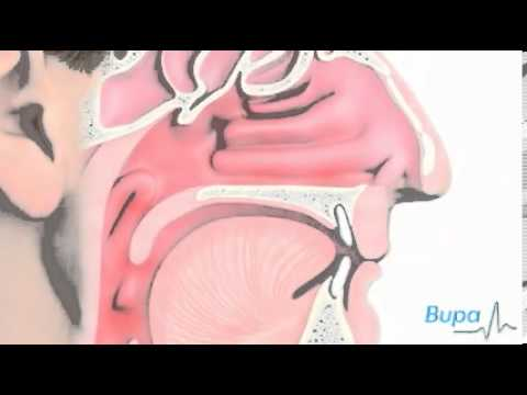 Common Cold Animation, How A Cold Develops   Free Medical Video   Medical Videos