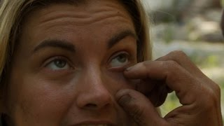 A Tick in the Eye | Naked and Afraid