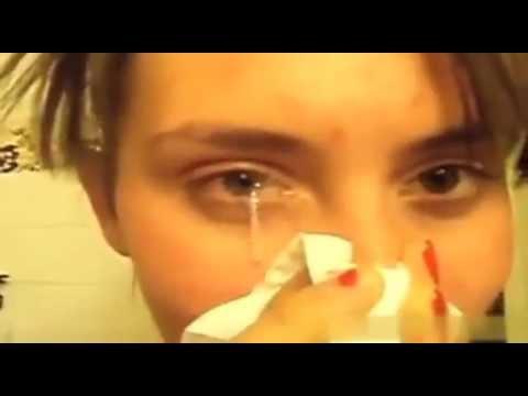 Girl Has Terrible Eye Boogers - YouTube