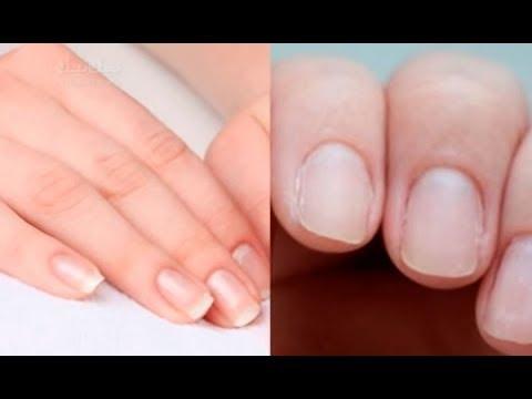 Чем стереть лак для ногтей