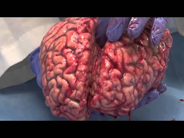 Watch A Neuroanatomist Explain The Human Brain With A Fresh Brain In